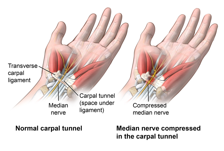 Can Chiropractors Help With Your Carpal Tunnel Syndrome? | HealthMax